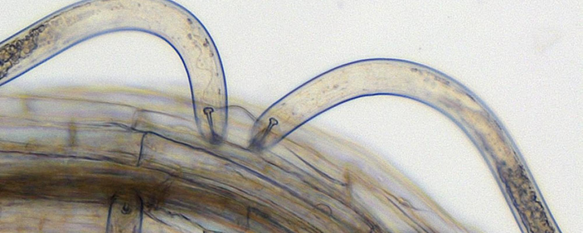 Cyst nematodes infecting A. thaliana root tissue